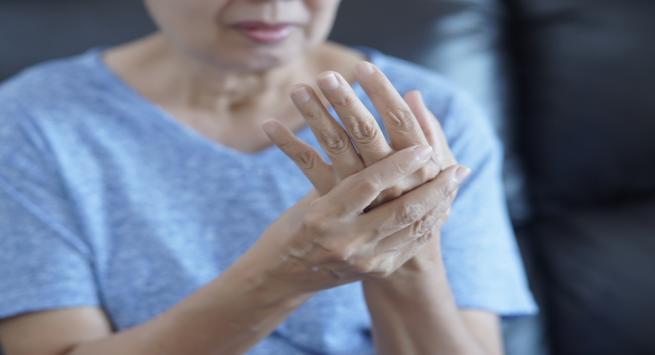 रूमेटाइड आर्थराइटिस ( Rheumatoid Arthritis)