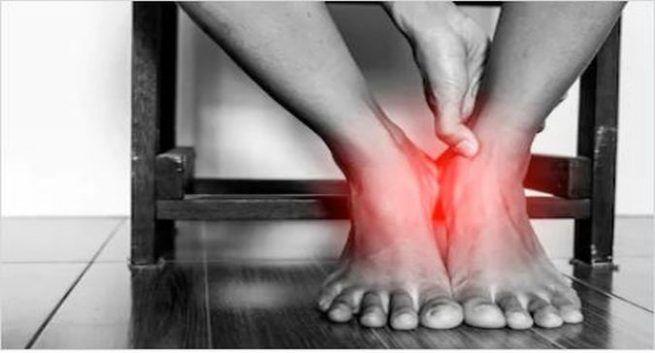 Sprain Problem