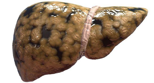 फैटी लिवर को दो भागों में बांटा जा सकता हैः (fatty liver types)